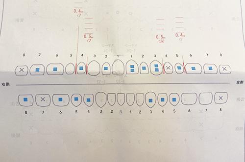 インビザラインアタッチメント接着部分の図